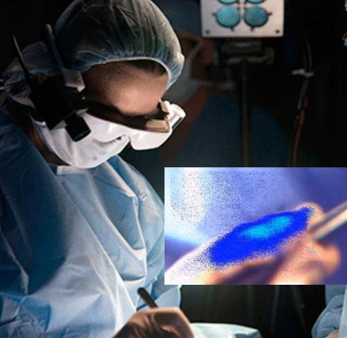 Смарт-очки для хирургов показывают раковые клетки