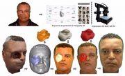 Бразильцу вернули лицо с помощью 3D-принтера