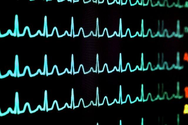 Часы AliveCor могут обнаруживать небезопасные уровни калия в будущем