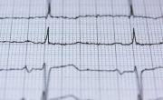 ИИ идентифицирует «невидимое» состояние сердца LQTS