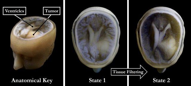 Мы скоро сможем получать трехмерную печатную модель своего мозга